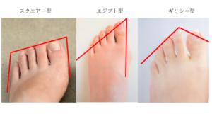 外反母趾,原因2,
